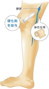 20代男性下肢静脈瘤の経過