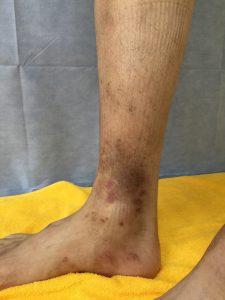 かゆい 足 ブツブツ 【部位別】皮膚のかゆみ(痒み)で見られる症状・種類