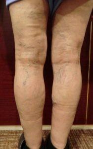 70代女性下肢静脈瘤事例