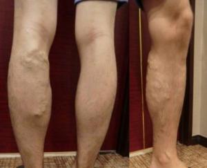 20代男性下肢静脈瘤の事例