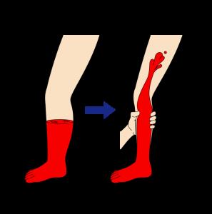 下肢静脈瘤の圧迫療法