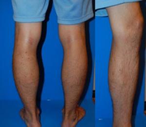 20代男性下肢静脈瘤の経過_2